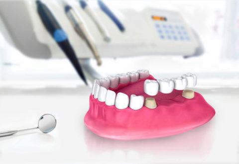 Ponte dentale in Turchia