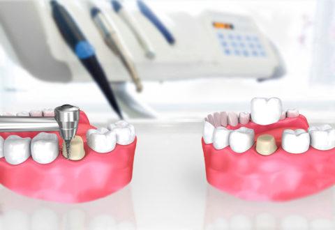 Corone dentali in Turchia