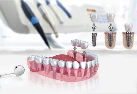 Impianti Odontoiatrici in Turchia