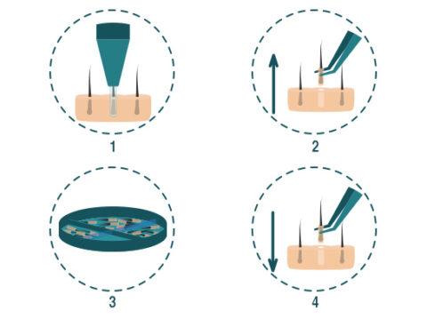 Hair transplant FUE Method 2
