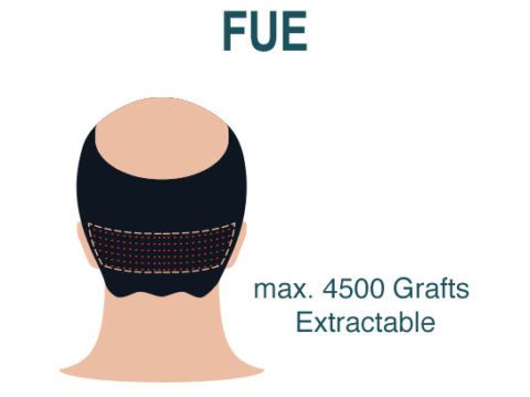 Hair Transplant Fue Technique
