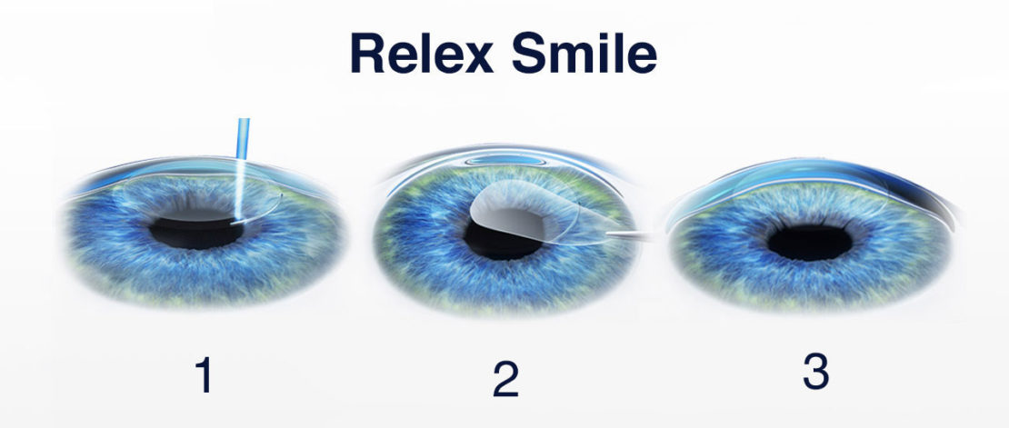 Relex Smile a Istanbul