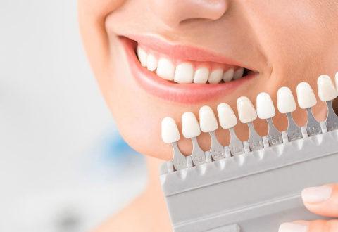 Sbiancamento dei denti in Turchia