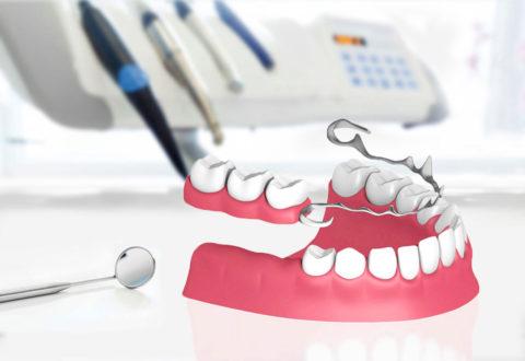Dentures istanbul
