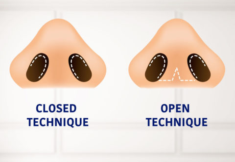 Rinoplastica a tecnica chiusa